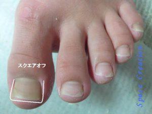 足の爪の切り方・スクエアオフ