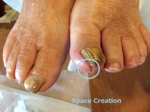 湘南あしケア訪問サービス・高齢者足の爪