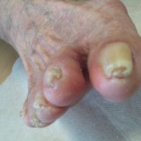 湘南あしケア訪問サービス・高齢者巻き爪の事例