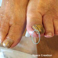 湘南あしケア訪問サービス 正しい足の爪の長さとは?