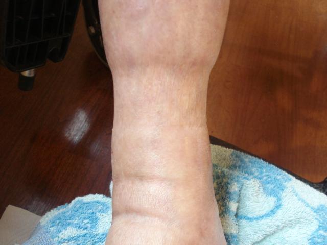 高齢者足の浮腫み