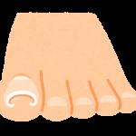 巻爪の痛み 湘南あしケア訪問サービス