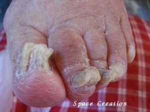 高齢者に多くある「肥厚爪」(ひこうそう)とは?
