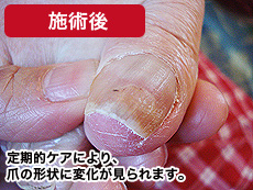 高齢者の巻き爪 施術後