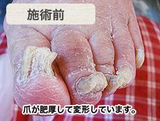 高齢者肥厚爪 施術前