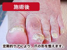 高齢者肥厚爪 施術後