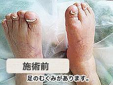 高齢者足の浮腫み 施術前
