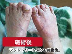 高齢者 足の浮腫み 施術後