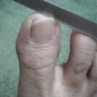 湘南あしケア訪問 足の爪のお手入れ・やすりがけ